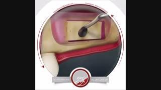 عمل جراحی لیفت سینوس باز  | دکتر اشکان مصطفی نژاد