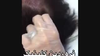 مزوتراپی ریزش مو