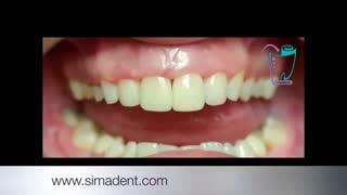 مراحل ترمیم دندان با کامپوزیت | سیمادنت