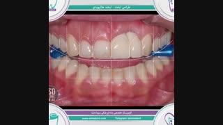 طراحی لبخند ( لبخند هالیوودی) | دندانپزشکی سیمادنت