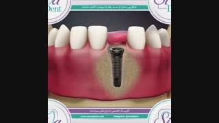 ایمپلنت ( کاشت دندان )   دندانپزشکی سیمادنت