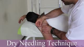 درمان دردهای مفصل شانه با سوزن درای نیدلینگ توسط فیزیوتراپیست صادق زراعتکار