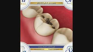ترمیم و درمان شکستگی یا ترک دندان   دندانپزشکی سیمادنت