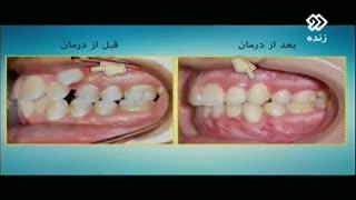 کشیدن دندان در ارتودنسی (قسمت دوم)| دکتر مسعود داوودیان