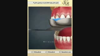 لمینیت سرامیکی | دندانپزشکی سیمادنت