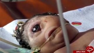 وحشت پزشکان از تولد نوزاد تک چشم در اندونزی