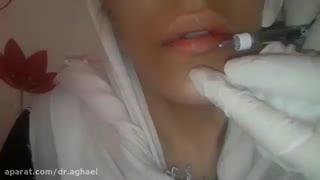 تزریق ژل لب