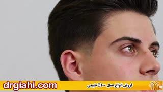 درمان قطعی ریزش مو به صورت طبیعی