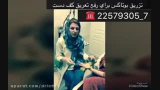 تزریق بوتاکس برای رفع تعریق کف دست