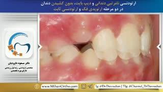 ارتودنسی بدون کشیدن دندان | دکتر داوودیان