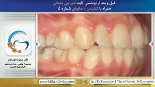 ارتودنسی ثابت | متخصص ارتودنسی در تهران