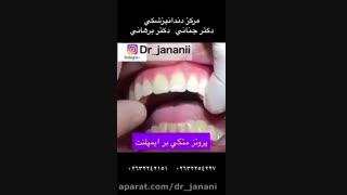 مرکز دندانپزشکی دکتر جنانی / دکتر برهانی