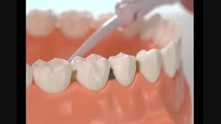 دستگاه تمیز کننده دندان پاورفلوس