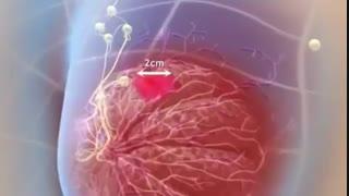 انیمیشن شرح سرطان سینه