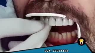 لمینت کردن دندانها رو ببینید