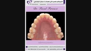 گسترش قوس فکی | دکتر فاضل فیروزی