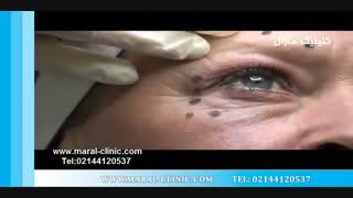 تزریق بوتاکس | فیلم تزریق بوتاکس | کلینیک پوست و مو مارال | شماره 5