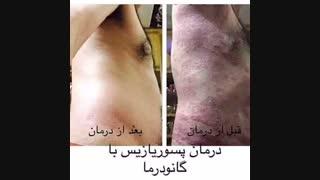 بیماری های پوستی