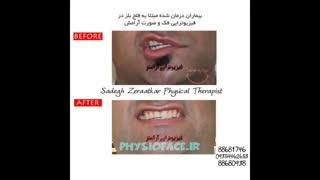 درمان های خانگی فلج عصب صورت