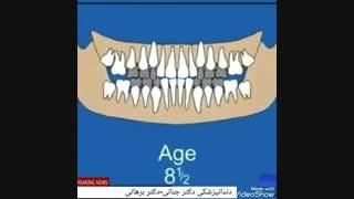 مراحل رشد و تکامل دندان انسان