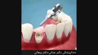 نحوه کشیدن دندان شکسته